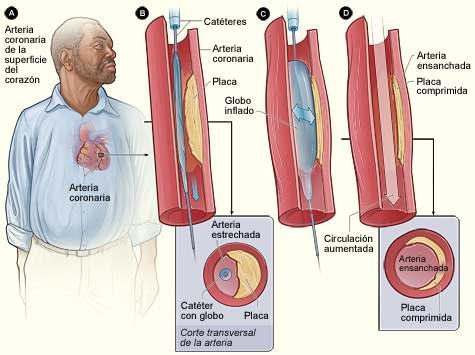 inflamacion-colesterol